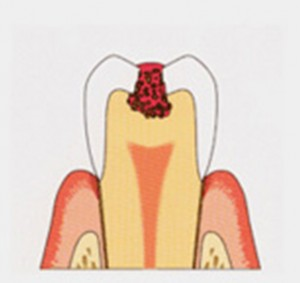 tooth_img003